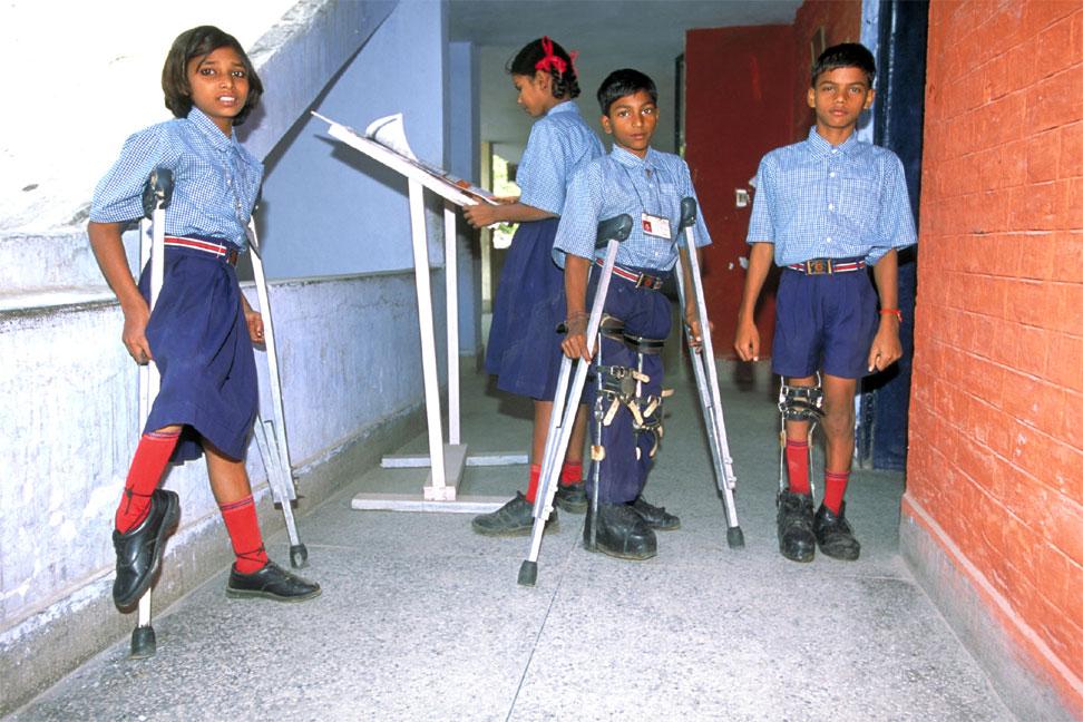 genocide via oral polio vaccine (opv), Skeleton