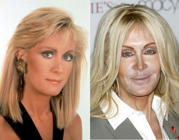 joan van ark before and after